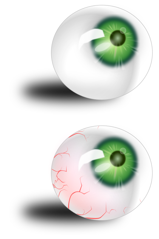 Eyeball Green & Bloodshot Clipart png free, Eyeball Green & Bloodshot transparent png